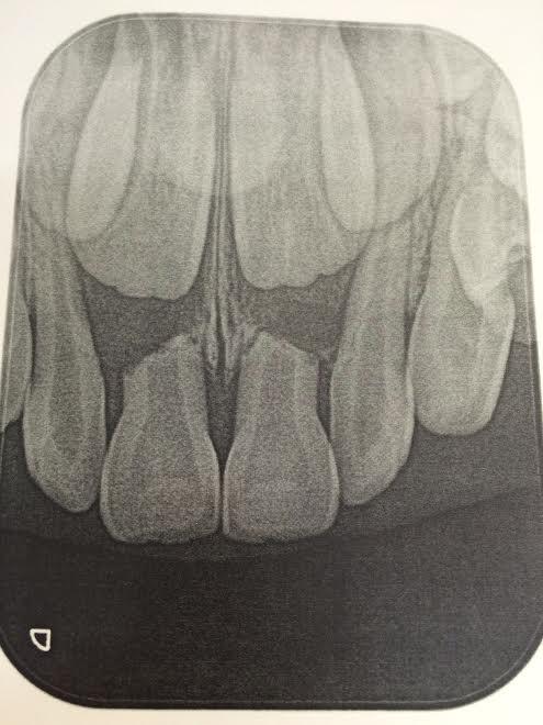 短くなってしまった乳歯の根